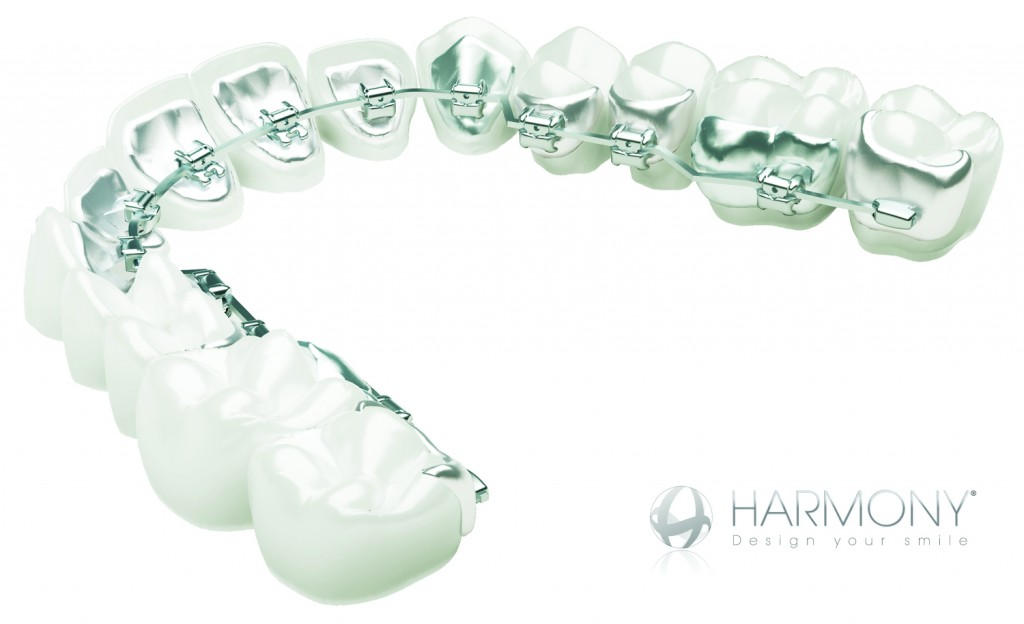 Harmony_teeth_arch
